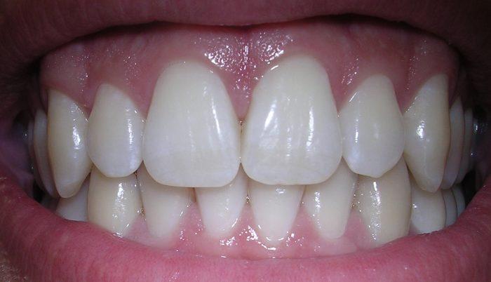 Idrossiapatite e salute dei denti- chimicamo